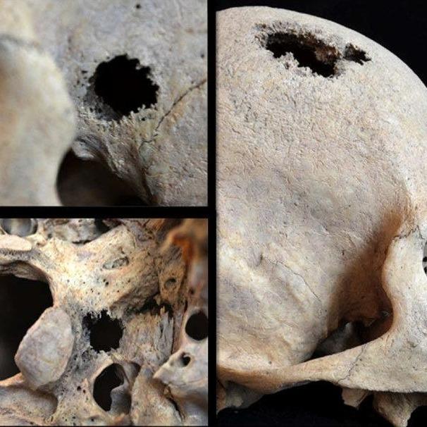 14. Paleopatologie. Co mówią nam kości? - Barbara Kwiatkowska, Aleksandra Karykowska