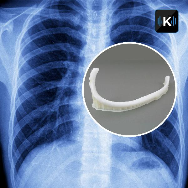 3D-printed rib implanted in Bulgaria -- Rolling hotel rooms coming to highways -- This Facebook hack won't actually work