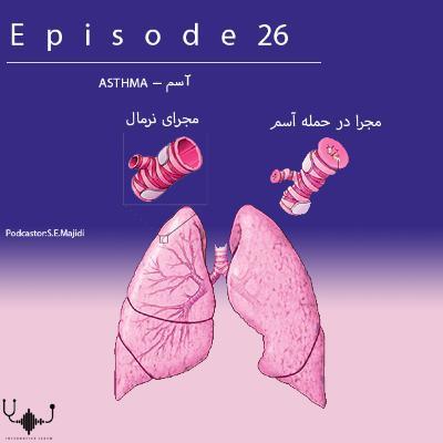 اپیزود بیست و ششم: آسم