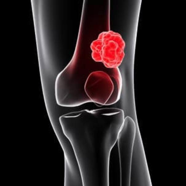 #43 - Metanálise - Uso de QT adjuvante para Sarcomas de Partes Moles