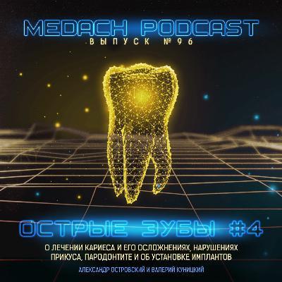 Острые зубы #4 | Терапевтическая и ортопедическая стоматология
