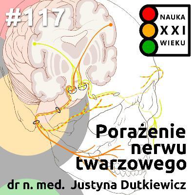#117 - Porażenie nerwu twarzowego