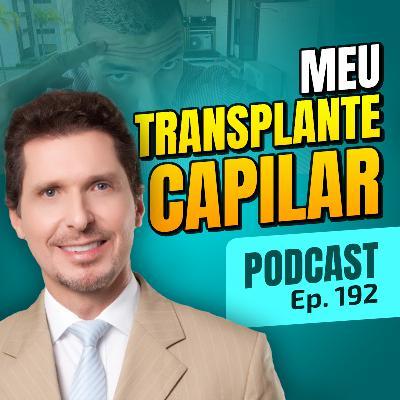 192. Por que fiz Transplante Capilar e como ele funciona? [Dr Gustavo Sartorato]