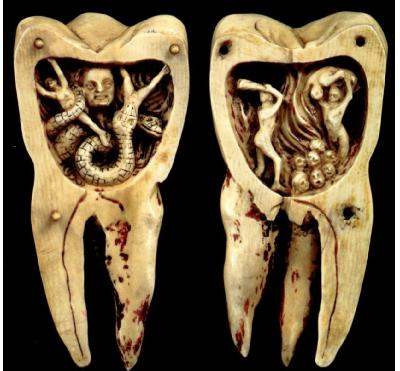 Tooth Worms and Tooth Pullers: Dentistry's Rotten History