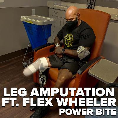 Flex Wheeler's Leg Amputation Explained ft. Flex Wheeler