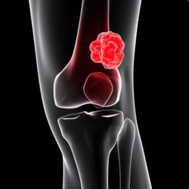 """#45 - Uso de QT """"padrão"""" com doxo e ifo vs. QT por histologia para tratamento de sarcomas ressecados"""