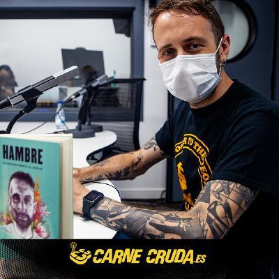 Anorexia: Toni Mejías (Chikos del Maíz) rompe el tabú (CARNE CRUDA #899)