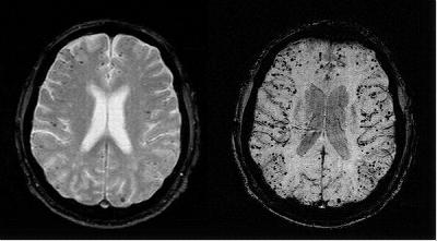 The Alzheimer's Copernicus Problem, Part 1