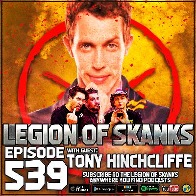 Episode #539 - Keep It On The DL - Tony Hinchcliffe