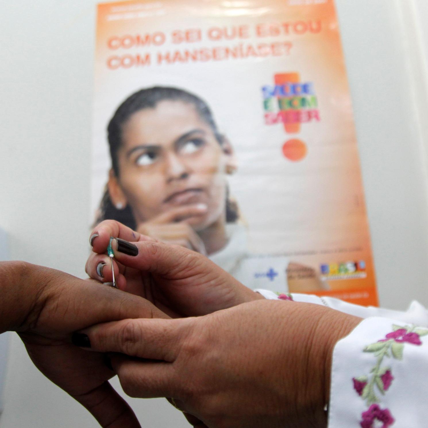 Pará registrou mais de dois mil casos de hanseníase em 2018