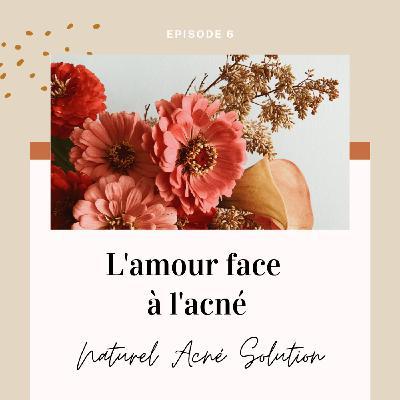 Episode 6 - L'amour face à l'acné
