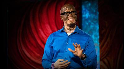 How I help people understand vitiligo | Lee Thomas