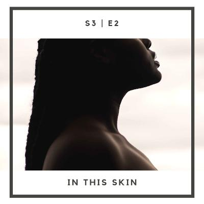 S3:E2 | In This Skin