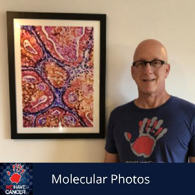 Molecular Photos; Supporting the Cancer Community Through Artwork