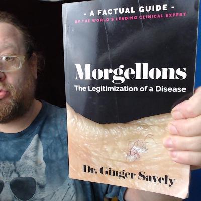Morgellons: The Legitimization of a Disease